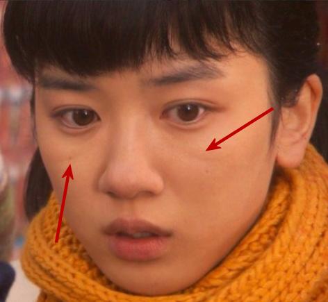 永野芽郁。この写真画像では目の下に線が気になる。ゴルゴ線・ゴルゴラインとも。